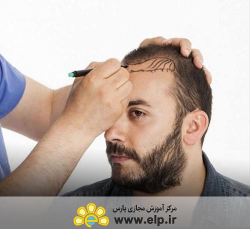 دستیار کاشت مو